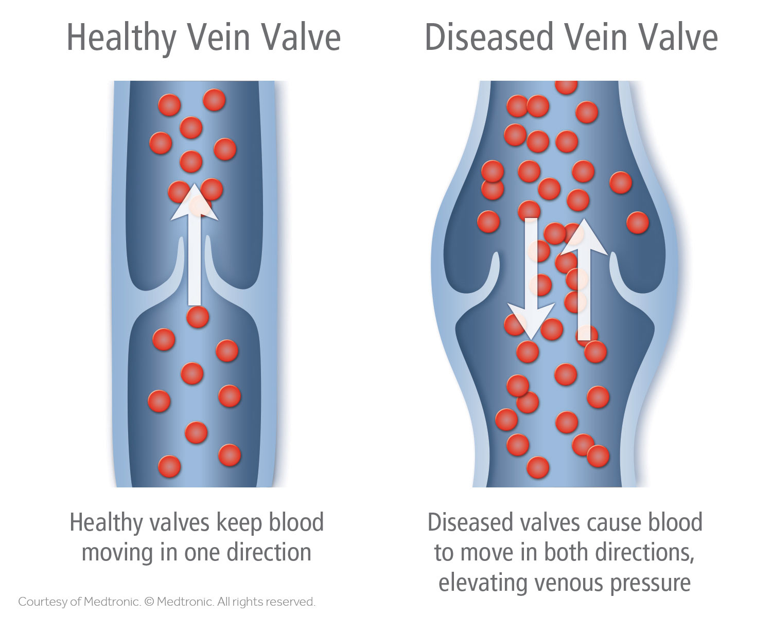 Healthy Vein Valve vs Diseased Vein Valve